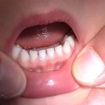 milk-teeth