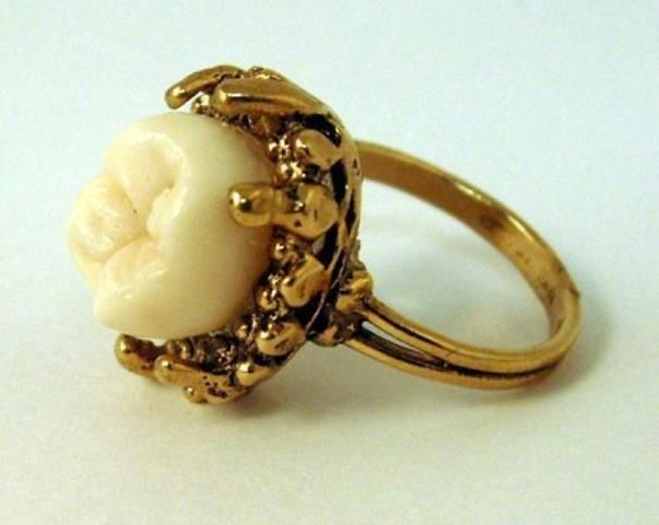 Isaac Newton's tooth in ring