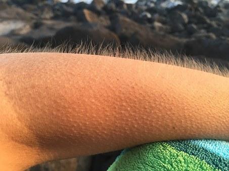 goosebumps-arm